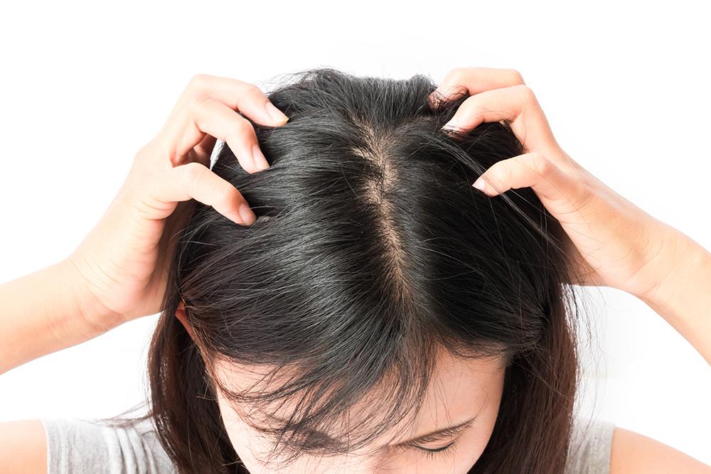 育児で手がいっぱいでもチェック!頭皮のトラブルの原因と解決方法